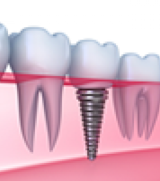 Speak Your Implant with Your Smile